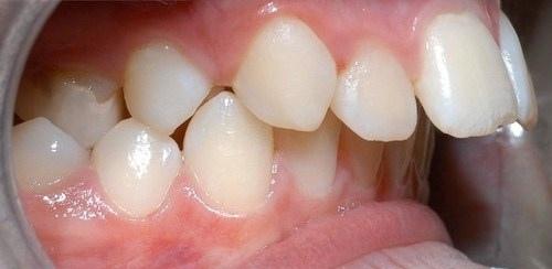 răng xấu phải làm sao