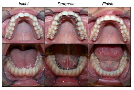 răng xấu phải làm thế nào 1