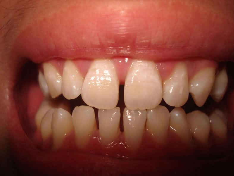 răng xấu phải làm thế nào