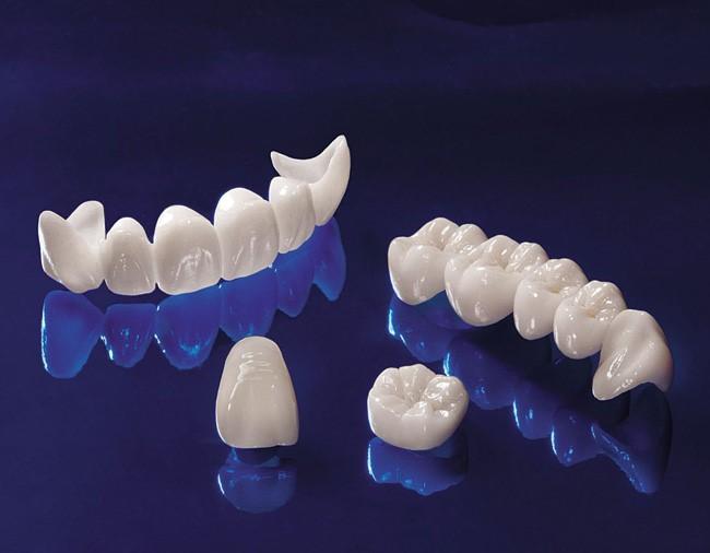 răng xấu phải làm thế nào 3