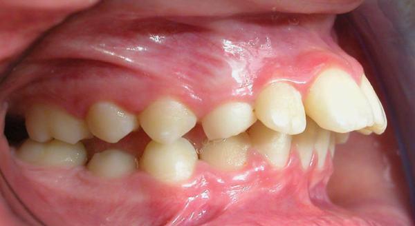 Cách chữa răng vẩu tại nhà
