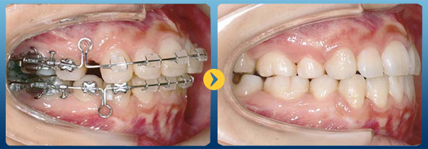 chi phí làm nẹp răng 2