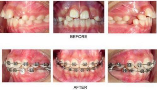 nguyên nhân răng bị hô 3