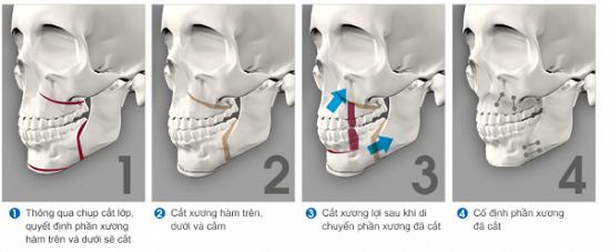 nguyên nhân răng bị hô 4