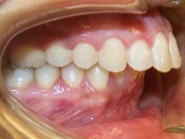 nguyên nhân răng bị hô