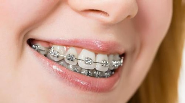 niềng răng hô mất bao lâu 1