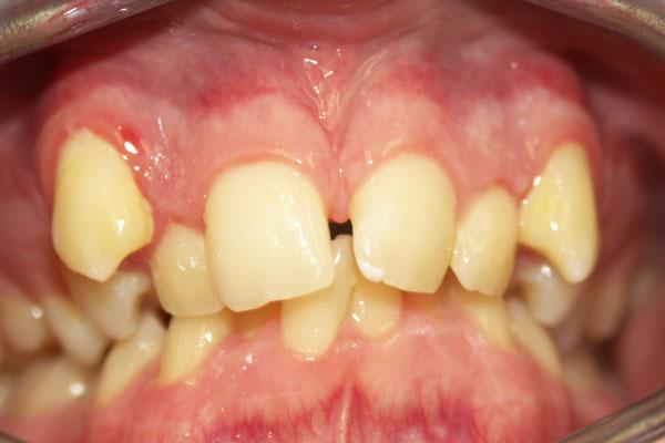 Niềng răng mọc lệch lạc 2