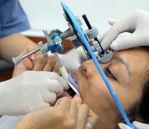 phân biệt hô hàm và hô răng 2