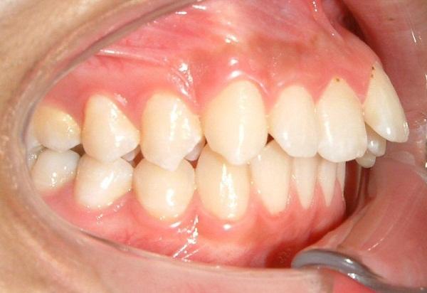 răng hô làm sao hết