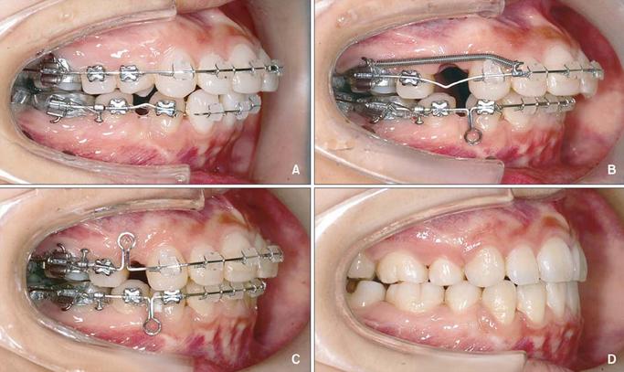 Cách làm răng bớt hô tại nhà 3