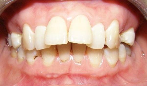 Cách làm răng hết hô 3