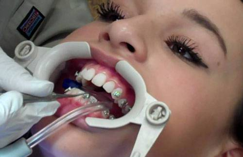 Chỉnh răng hô không cần niềng 4