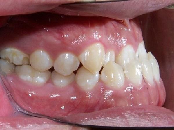 Chỉnh răng móm giá bao nhiêu