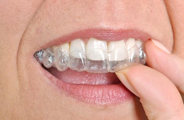 Làm máng răng giá rẻ 1