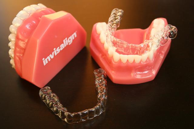 Làm máng răng giá rẻ 4