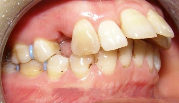 Nguyên nhân gây răng vẩu