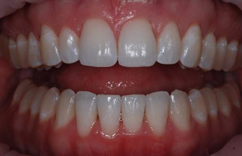 Niềng răng chen chúc 1
