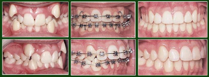 Niềng răng chen chúc 2