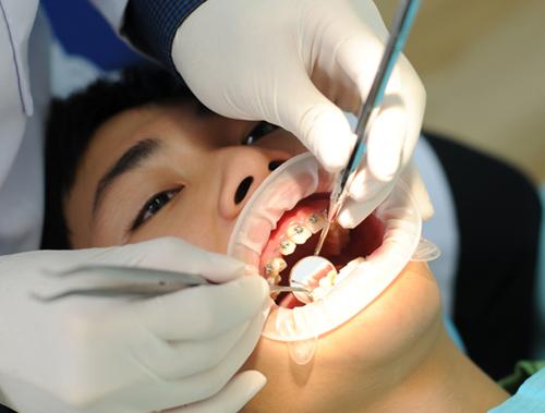 Niềng răng chen chúc 4