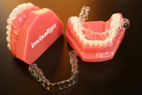 niềng răng không mắc cài clear aligner hà nội
