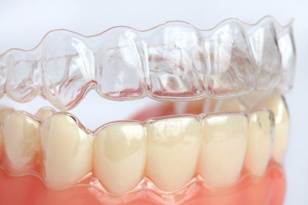 Niềng răng không mắc cài clear aligner 1