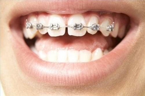 Niềng răng thưa hàm trên