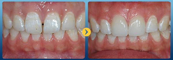 Niềng răng thưa hàm trên1