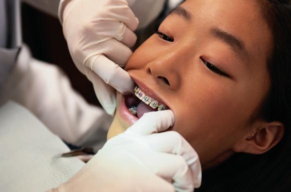 Răng mọc lệch ở trẻ em 3