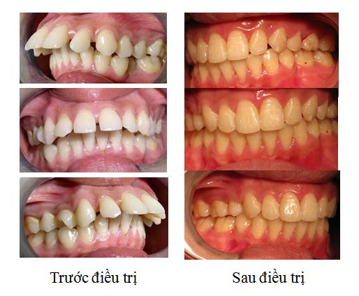 cách che khuyết điểm răng hô 7