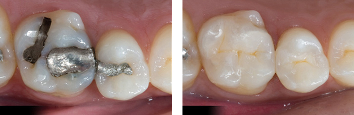 Làm thế nào để hàm răng đều