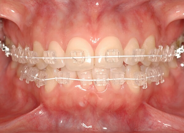 niềng răng khểnh bao nhiêu tiền 4