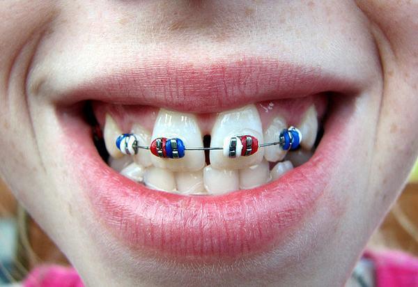 niềng 2 răng cửa hết bao nhiêu tiền
