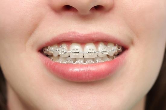 tháo niềng răng trước thời hạn 2