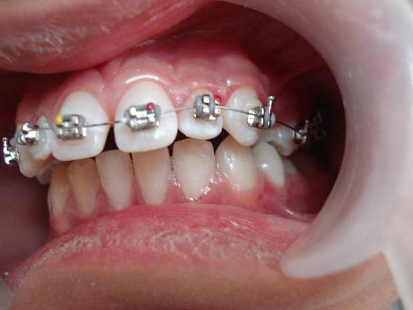 niềng răng hô hàm trên giá bao nhiêu 2