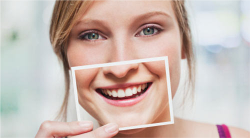 Niềng răng lệch hàm 1