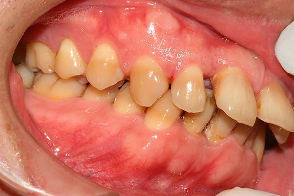 niềng răng hô hàm trên giá bao nhiêu