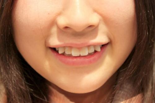 răng khểnh có ý nghĩa gì