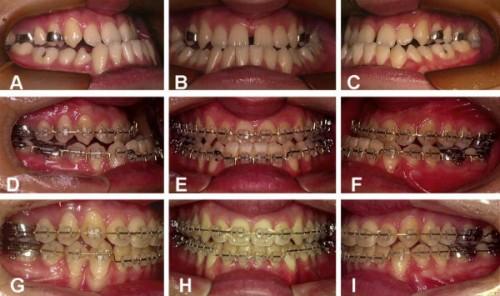 trước và sau khi niềng răng móm 1