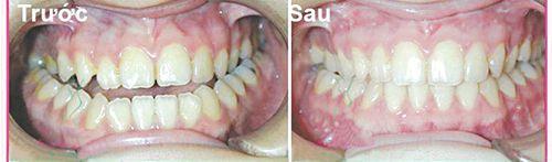 trước và sau khi niềng răng móm
