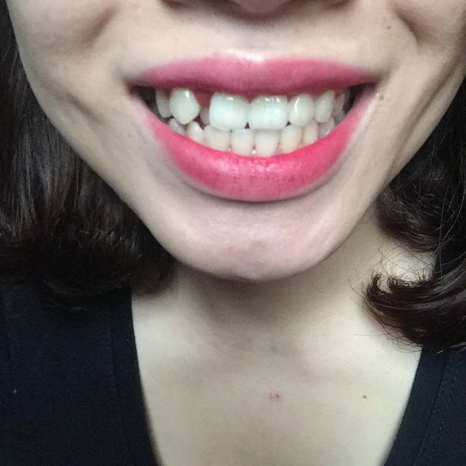 răng khểnh đẹp hay xấu
