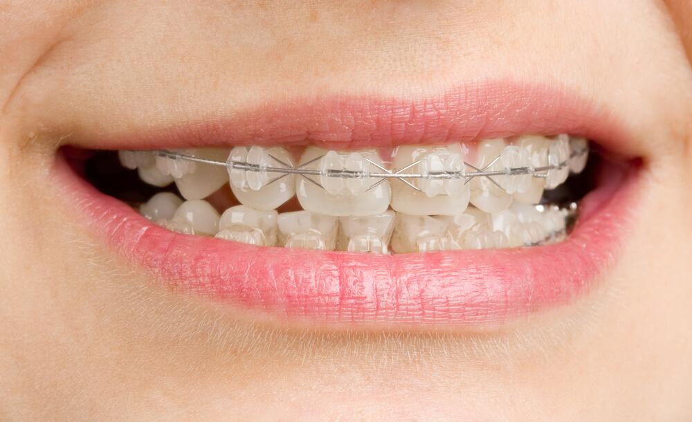 Có nên niềng răng mắc cài sứ không 1
