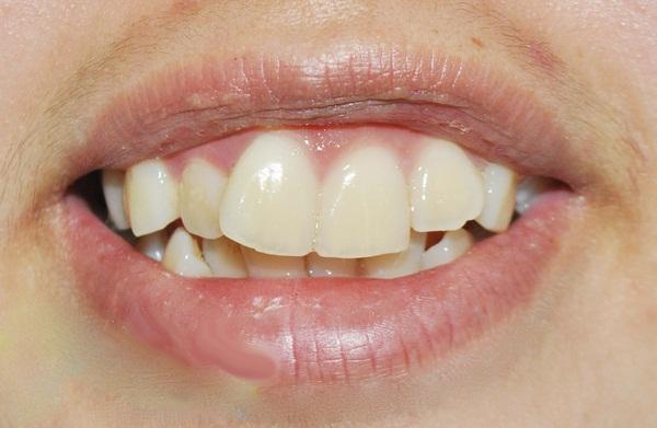 Răng cửa dài và hô