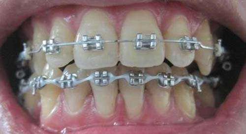Răng cửa dài và hô 1