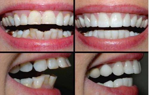Răng cửa to và hô 1