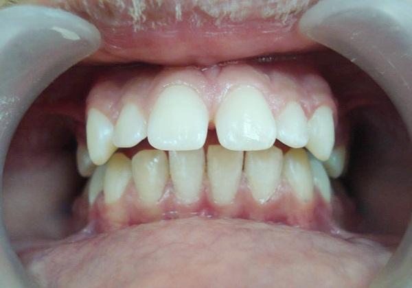 Răng đều nhưng bị hô