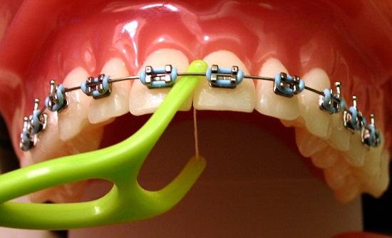 dùng chỉ nha khoa khi niềng răng 2