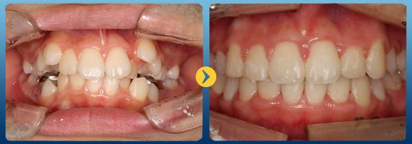 thay đổi của răng trong các giai đoạn niềng răng 3