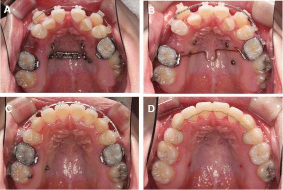 thay đổi của răng trong các giai đoạn niềng răng 1