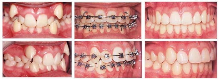 thay đổi của răng trong các giai đoạn niềng răng