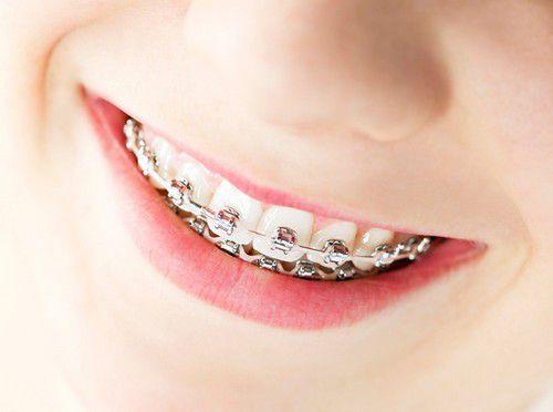 răng khểnh là gì
